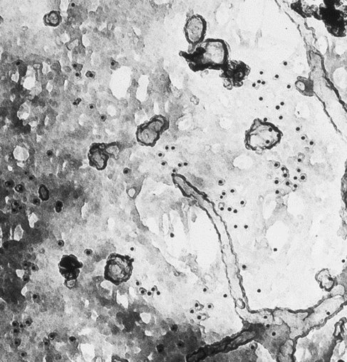 scanning transmission electron microscopy thesis The environmental scanning electron microscope or esem is a whilst a more recent survey can be found in a phd thesis by cells in transmission microscopy.